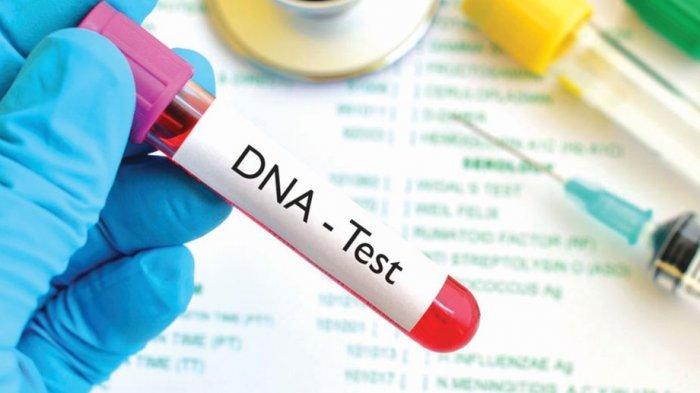 Saksi Cleaning Service di Kejagung Diduga Digunduli, Benarkah Menyulitkan Tes DNA? Ini Kata Pakar