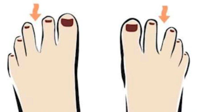 Tes kepribadian - Bentuk jari kakimu dapat mengungkap sifat aslimu yang mendominasi.