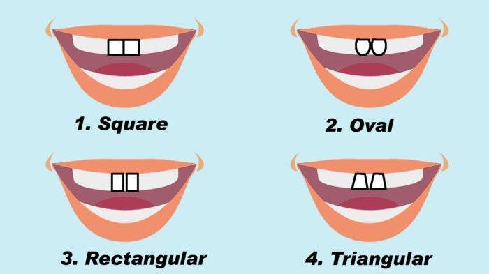 TES KEPRIBADIAN: Ketahui Karaktermu dari Bentuk Gigi Depan, Bentuk Oval Pemalu dan Persegi Objektif