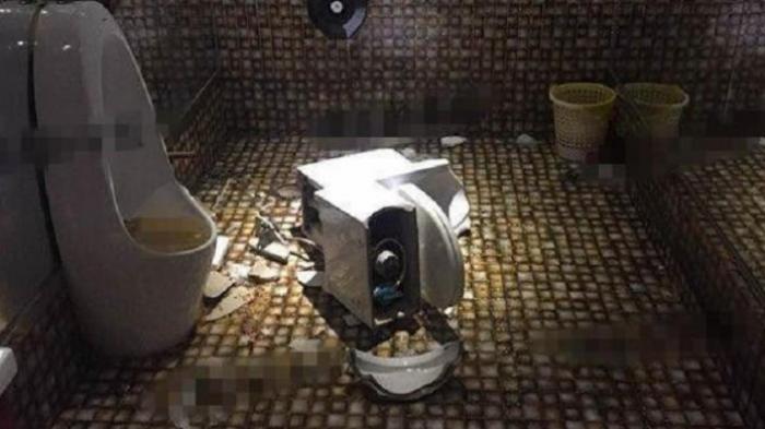 Dudukan Toilet Meledak, Kemaluan Wanita Ini Luka Parah
