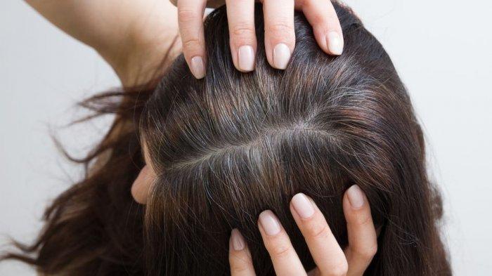 Bukan Hanya Dialami Lansia, Ini 5 Penyebab Rambut Beruban di Usia Muda