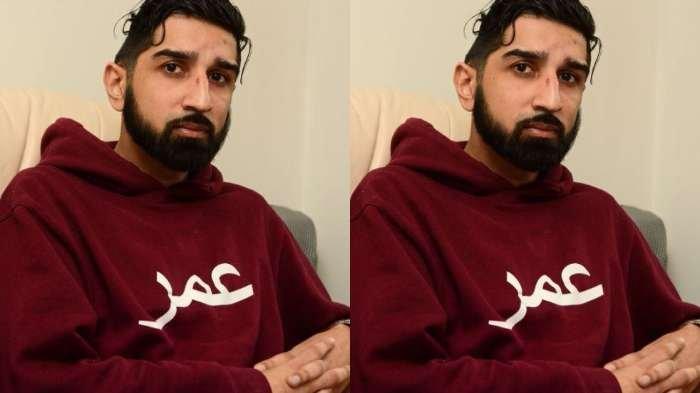 Kisah Hidup Umar Husein, Masih Bisa Bertahan Hidup Setelah Seperempat Tengkoraknya Hilang