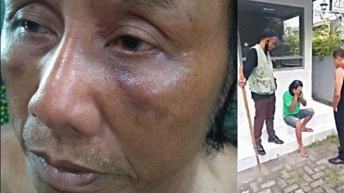 Cerita Tukang Becak Numpang Kencing Malah Dipukul Satpam: Memang Arogan