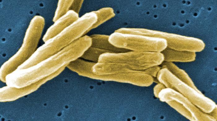 Virus tuberculosis.
