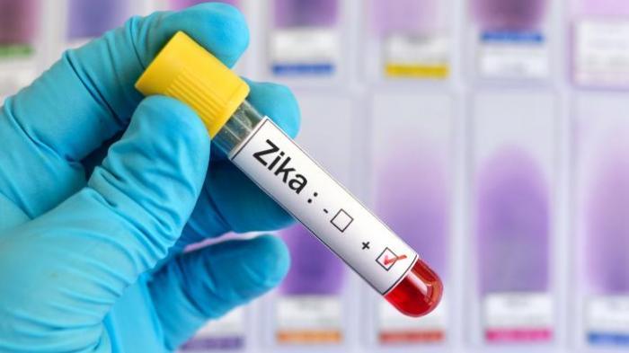 Virus Zika Menjangkiti 16 Wanita Hamil di Singapura