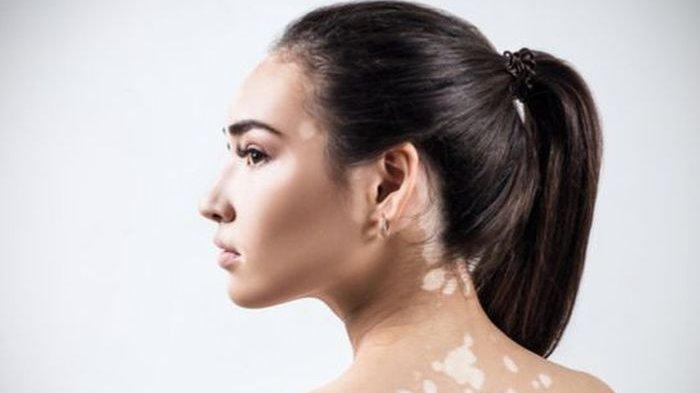 Vitiligo menyebabkan hilangnya warna kulit, sehingga menimbulkan bercak-bercak yang berbeda dengan warna kulit asli.