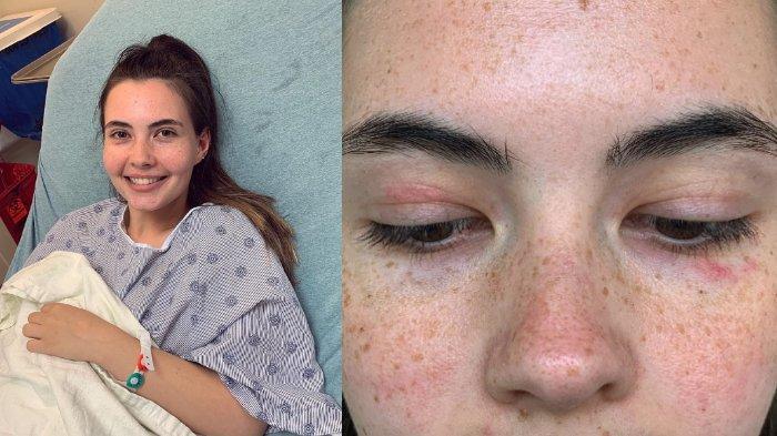 Kisah Wanita 21 Tahun yang Mengidap Alergi Air, Keringat dan Air Mata Sendiri Bisa Melukainya