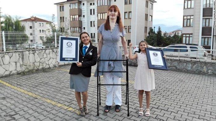 Wanita Turki Dinobatkan Jadi Perempuan Tertingi di Dunia, Pakai Alat Bantu untuk Berjalan