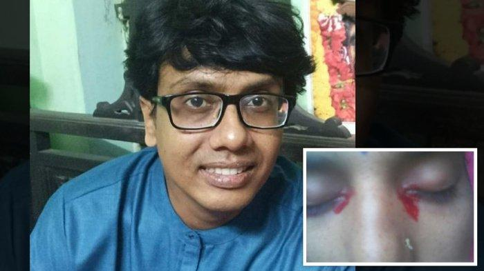 Wanita di India Keluarkan Air Mata Darah, Dokter Sebut Kondisinya Berkaitan dengan Menstruasi