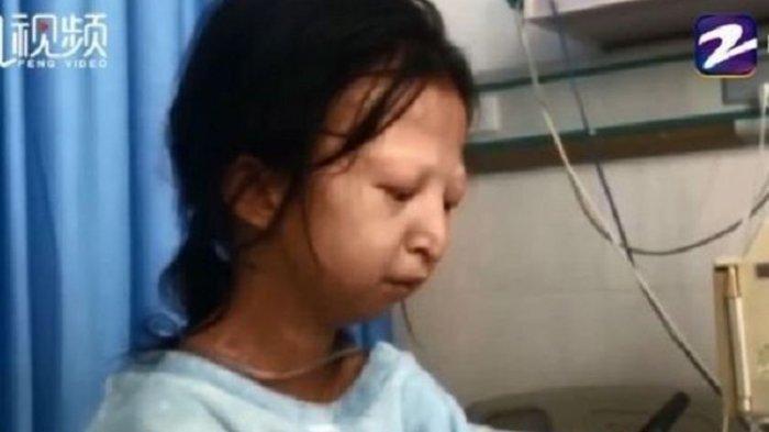 Kisah Gadis di China Hanya Makan Nasi dan Sambal Selama 5 Tahun Demi Bantu Adiknya yang Sakit
