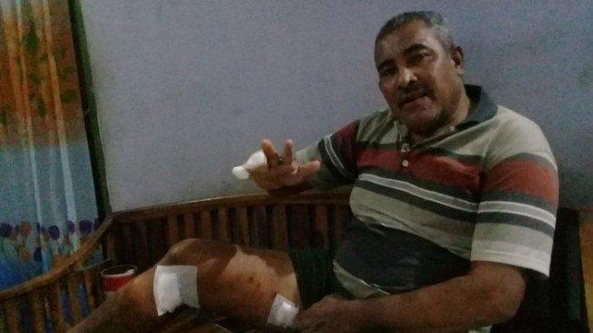 Warga Kota Kupang Kehilangan Dua Jari Tangan Kanan karena Diserang Buaya Saat Memancing