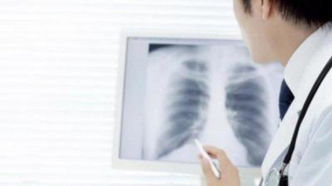 Gejalanya Mirip, Ini Perbedaan Pneumonia dan Infeksi Covid-19: Termasuk Ruam Kulit dan Diare