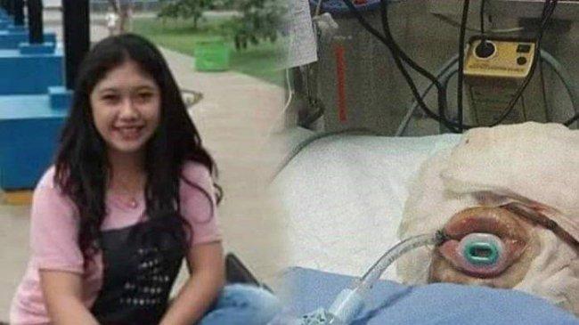 Kronologi Gadis Cianjur Dibakar Pacarnya hingga Meninggal Dunia, Sempat Dirawat di Rumah Sakit