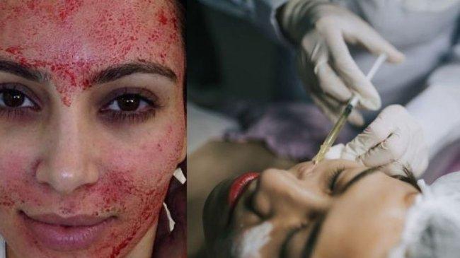 Manfaat Vampire Facelift bagi Kulit, Seperti yang Pernah Dilakukan Kim Kardashian
