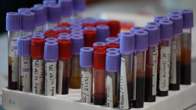 pelindo-iii-gelar-screening-donor-plasma-konvalesen_20210121_221250.jpg