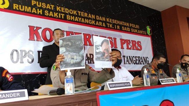 Kondisi Gigi Patah Jadi Petunjuk Tim DVI Identifikasi 2 Jenazah Korban Kebakaran Lapas Tangerang