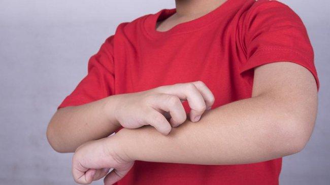 Solusi Cepat, Kenali 4 Cara Cek Alergi yang Dialami Si Kecil