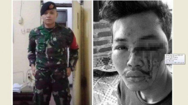 Kapolda Sumut Perintahkan Tangkap Pecatan TNI yang Culik dan Aniaya Warga: Turunkan Tim