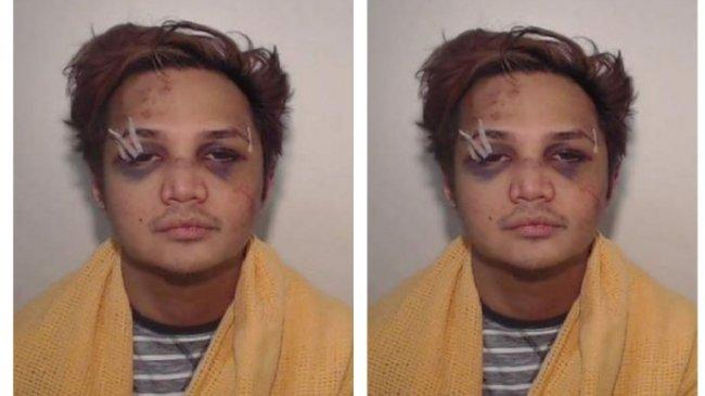 Polisi Rilis Foto Predator Seksual Reynhard Sinaga saat Pertama Kali Ditangkap, Penuh Luka Lebam