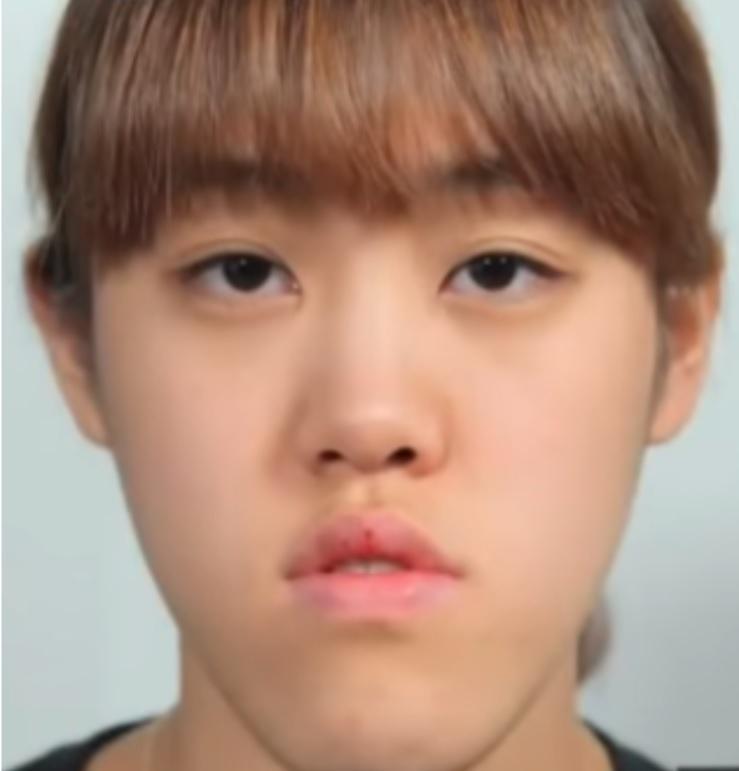 Heo Ye Eun sebelum menjalani prosedur operasi plastik.