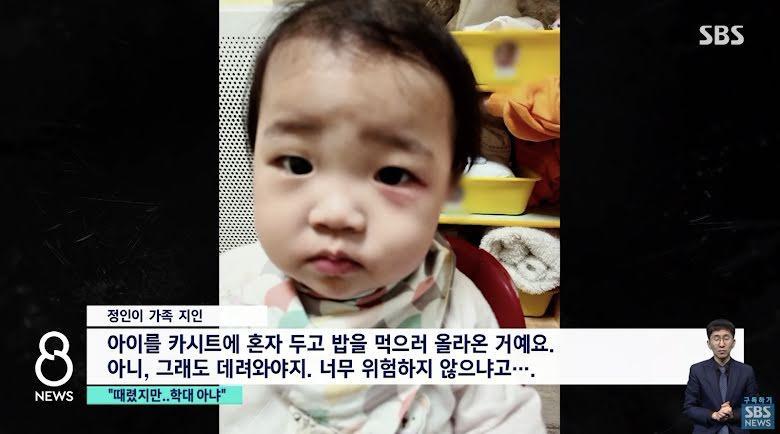 Foto Jung In, dimana ada bekas luka memerah di bawah matanya.