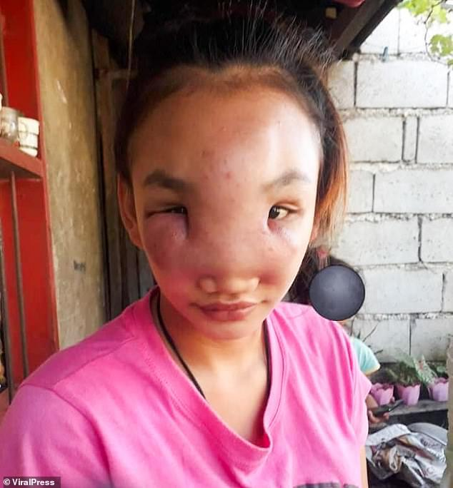 wajah Mary Ann Regacho membengkak setelah memencet jerawat