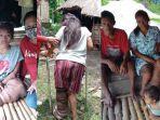Kisah Gadis asal NTT yang Menderita Penyakit Kaki Gajah sejak Kecil, Butuh Tongkat untuk Berjalan
