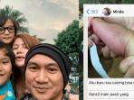 Gara-gara Pasir, Anji Manji Kaget Tangan Balitanya Kemasukan Cacing: Kejadian Jarang, Tapi Nyata