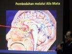 bedah-tumor-otak-lewat-alis-mata_20171013_195754.jpg