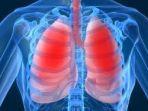 hipertensi-paru_20170504_195942.jpg