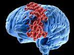 Radiasi HP dan Laptop Bisa Picu Kanker Otak, Benarkah? Simak Penjelasan Dokter