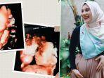 irish-bella-keguguran-di-kehamilan-27-week.jpg