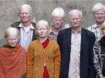 keluarga-albino-di-india.jpg