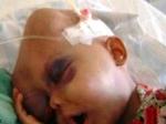 Kenali Gejala Leukemia Pada Anak, Orang Tua Wajib Deteksi Dini