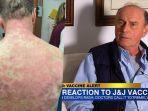 Pria di Virginia Alami Reaksi Langka setelah Divaksin Covid-19 Johnson & Johnson, Kulit Terkelupas