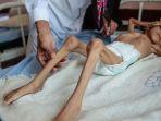 perang-arab-saudi-dan-iran-merenggut-nyawa-gadis-cilik-asal-yaman_20181105_195528.jpg