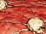Semua Orang Punya Gen Kanker, Apa yang Perlu Diketahui Tentang Itu? Simak Penjelasan Dokter