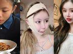 Cerita Gadis 16 Tahun Pecandu Operasi Plastik, Akui Dulu Jelek dan Sering Dibully, Kini Bak Boneka