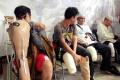 Bantuan Kaki dan Tangan Palsu Bagi Penyandang Disabilitas