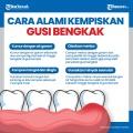 infografis-cara-alami-kempiskan-gusi-bengkak_20200924_012809.jpg