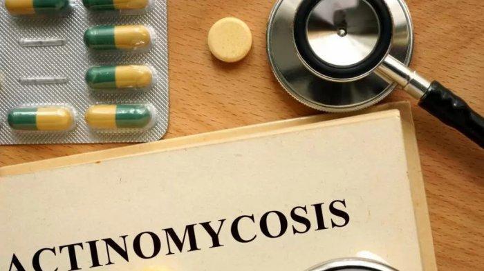 Aktinomikosis-adalah-infeksi-langka-yang-dapat-menyebar-ke-seluruh-jaringan-tubuh.jpg