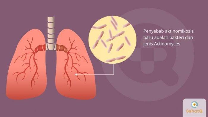 Aktinomikosis paru lebih berisiko dialami pria, dibandingkan wanita.