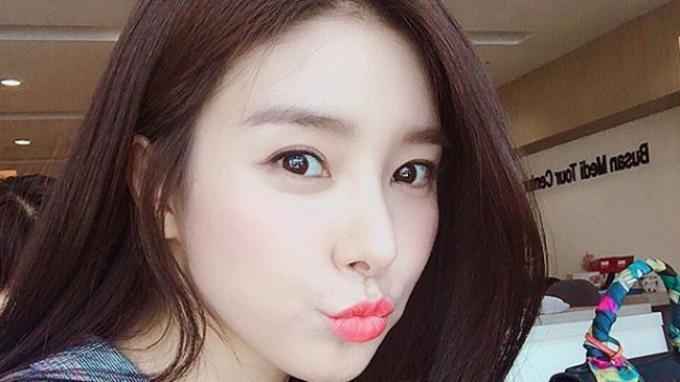 Kim So-eun Aktris Korea Selatan