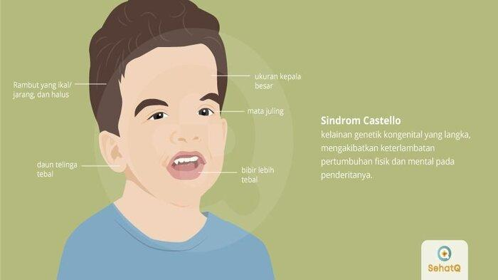 Sindrom Costello 1
