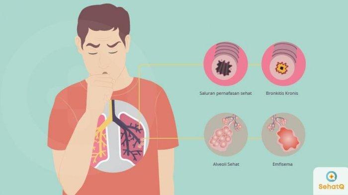 Terhalangnya aliran udara ke paru-paru adalah ciri dari PPOK