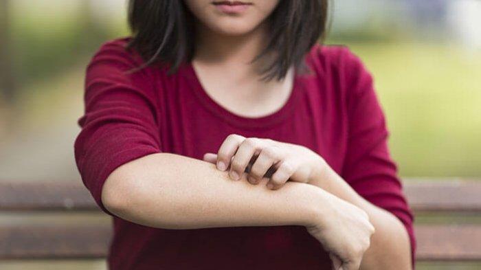 Dermatitis herpetiformis adalah kondisi yang memiliki gejala seperti merasa gatal