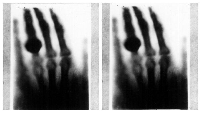 Foto Sinar X pertama dari istri Wilhelm Conrad Rontgen