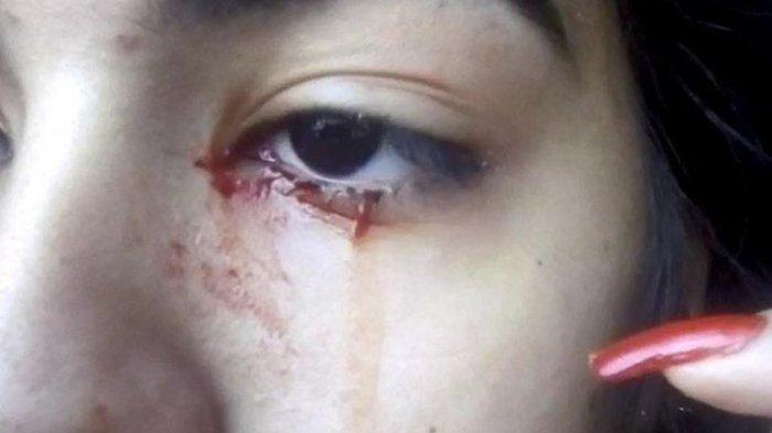 Gadis asal Brasil, Doris, mengeluarkan darah dari matanya.