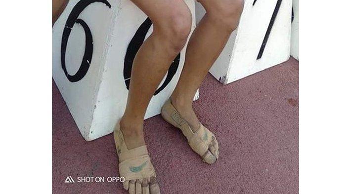 Karena tak punya sepatu, gadis 11 tahun ini perban kakinya untuk ikut lomba lari, akhirnya dapat 3 medali emas.
