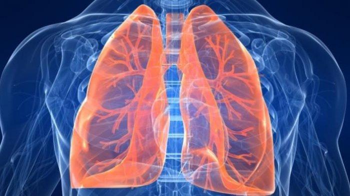 ilustrasi-asbestosis.jpg